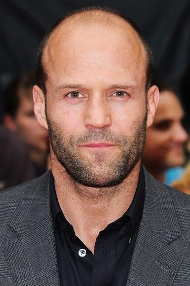 Light beard with partial baldness