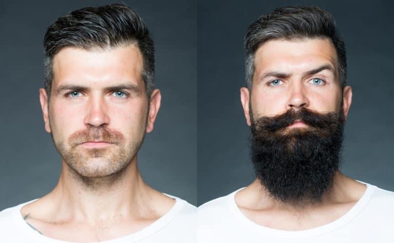 beard-growth