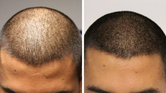 Adding Density to Thin hair