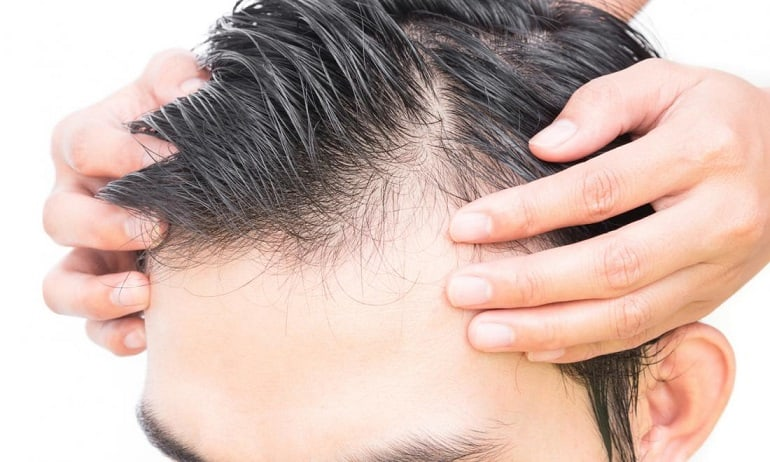 Hair Thinning In Men